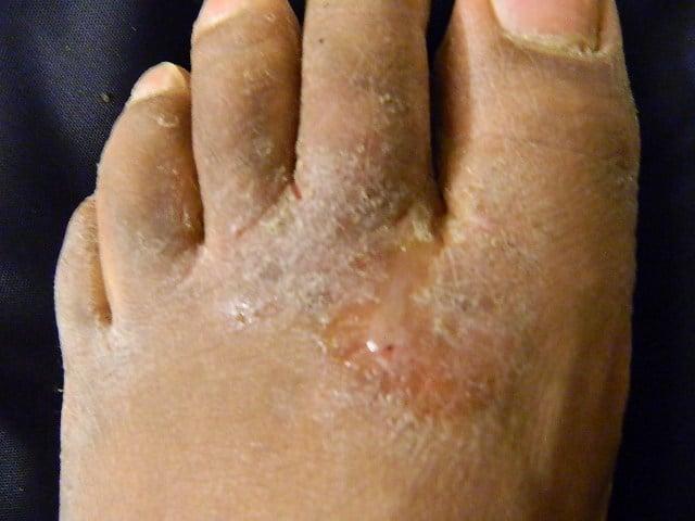 Athlete's_foot